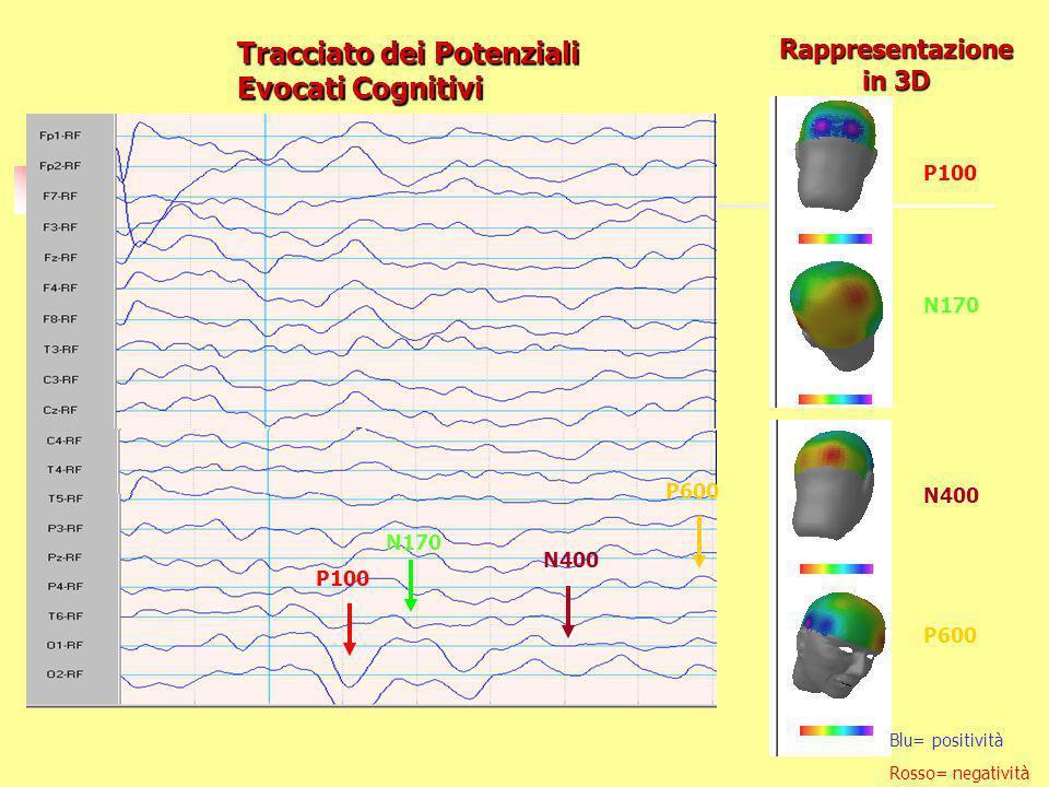 Tracciato dei Potenziali Evocati Cognitivi P100 N170 N400 P600 Rappresentazione in 3D Blu= positività Rosso= negatività P100 N170 N400 P600