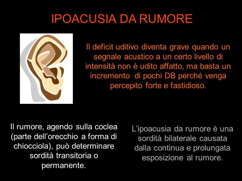 Lipoacusia da rumore è una sordità bilaterale causata dalla continua e prolungata esposizione al rumore. Il rumore, agendo sulla coclea (parte dellore