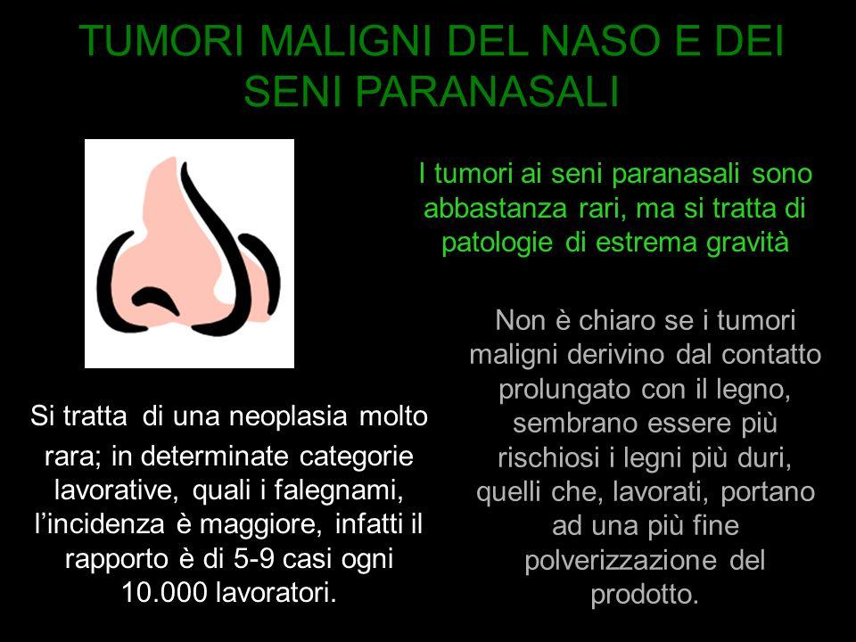 I tumori ai seni paranasali sono abbastanza rari, ma si tratta di patologie di estrema gravità Non è chiaro se i tumori maligni derivino dal contatto