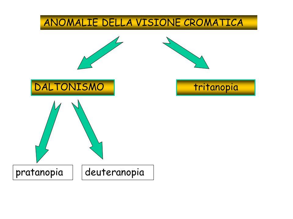 ANOMALIE DELLA VISIONE CROMATICA DALTONISMO pratanopiadeuteranopia tritanopia