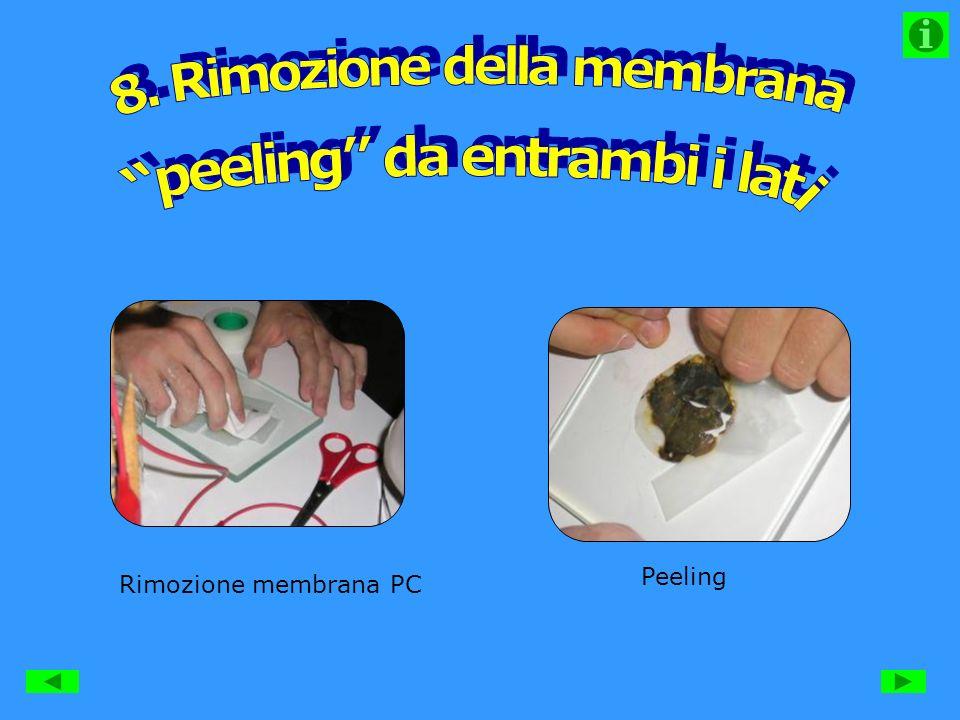 Rimozione membrana PC Peeling