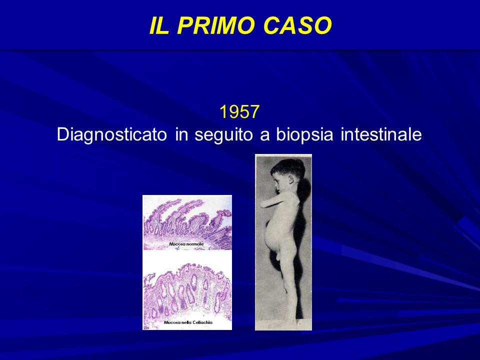 IL PRIMO CASO 1957 Diagnosticato in seguito a biopsia intestinale