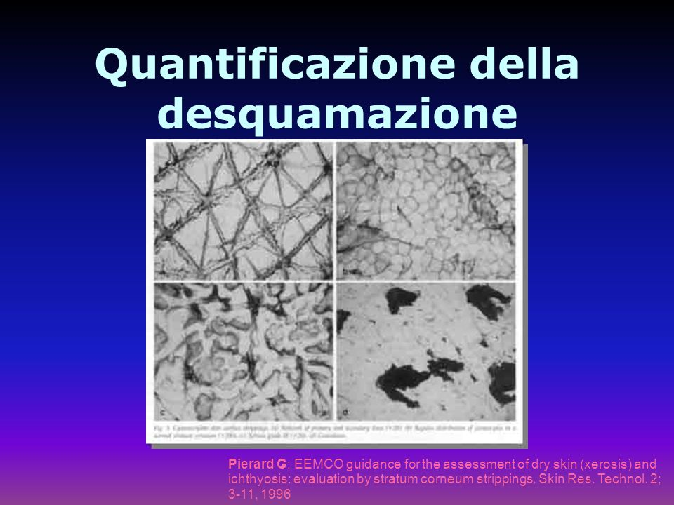 Quantificazione della desquamazione Pierard G: EEMCO guidance for the assessment of dry skin (xerosis) and ichthyosis: evaluation by stratum corneum strippings.