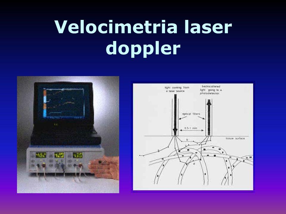 Velocimetria laser doppler