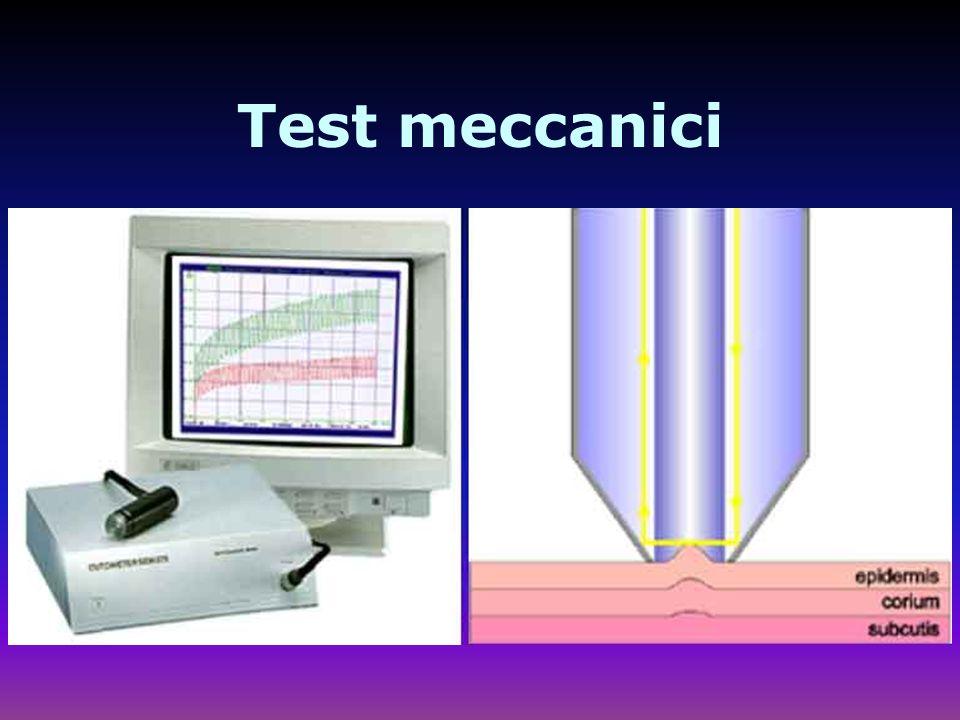 Test meccanici