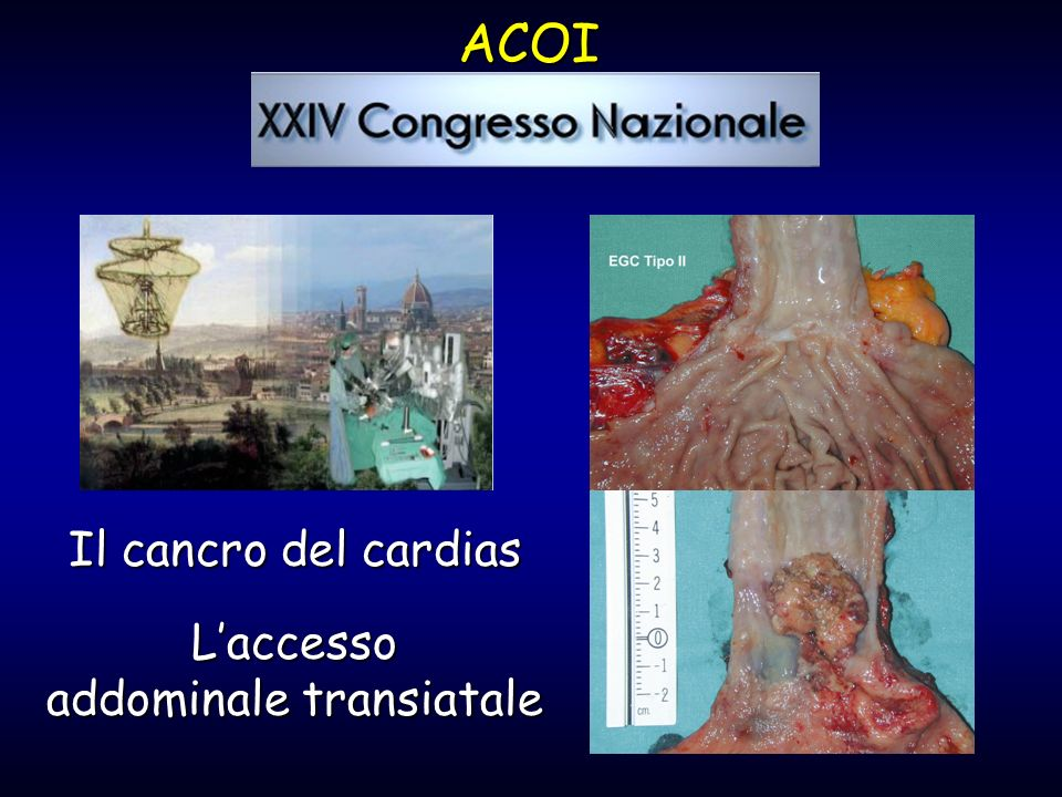 Il cancro del cardias Laccesso addominale transiatale ACOI