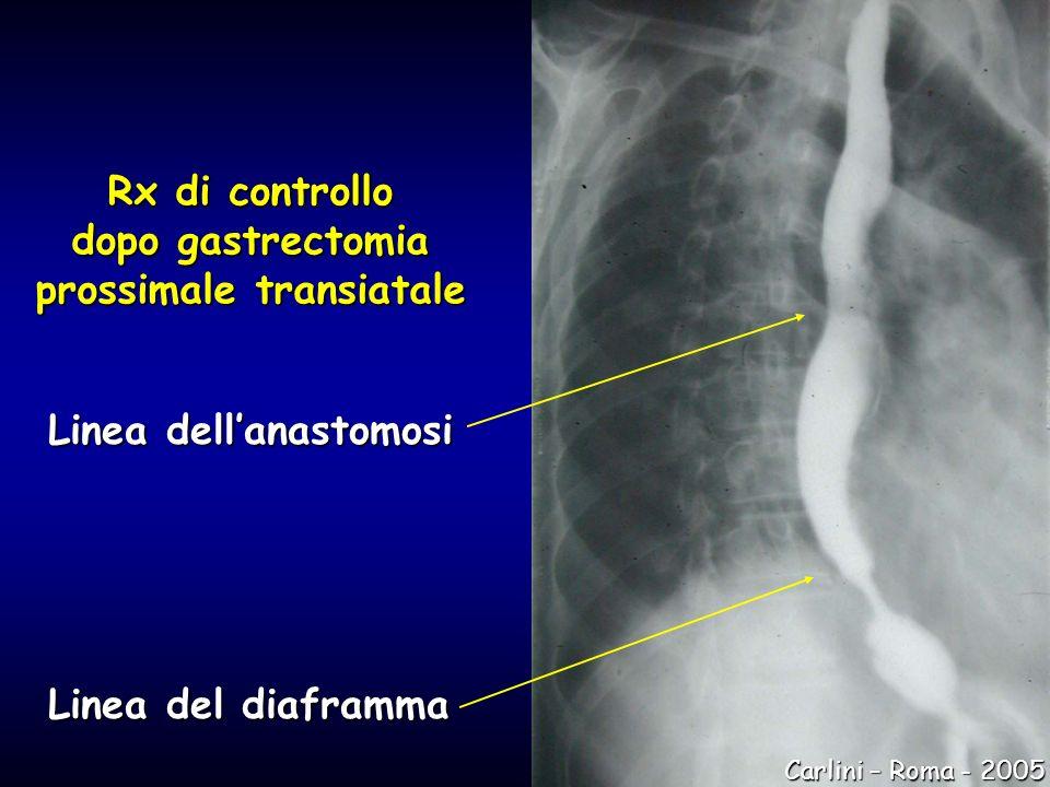 Rx di controllo dopo gastrectomia prossimale transiatale Linea dellanastomosi Linea del diaframma Carlini – Roma - 2005