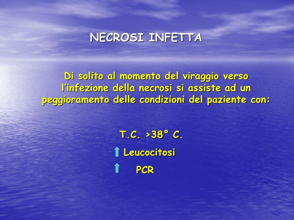 NECROSI INFETTA Di solito al momento del viraggio verso linfezione della necrosi si assiste ad un peggioramento delle condizioni del paziente con: T.C