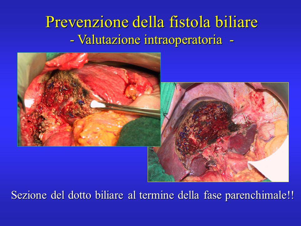 Prevenzione della fistola biliare - Valutazione intraoperatoria - Sezione del dotto biliare al termine della fase parenchimale!!