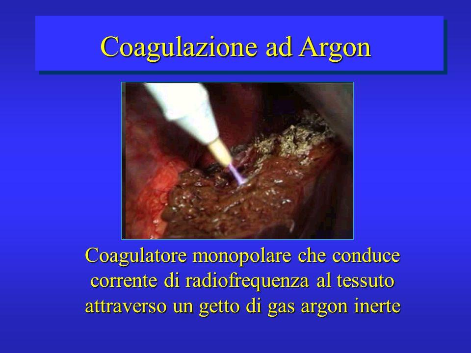 Coagulazione ad Argon Coagulatore monopolare che conduce corrente di radiofrequenza al tessuto attraverso un getto di gas argon inerte