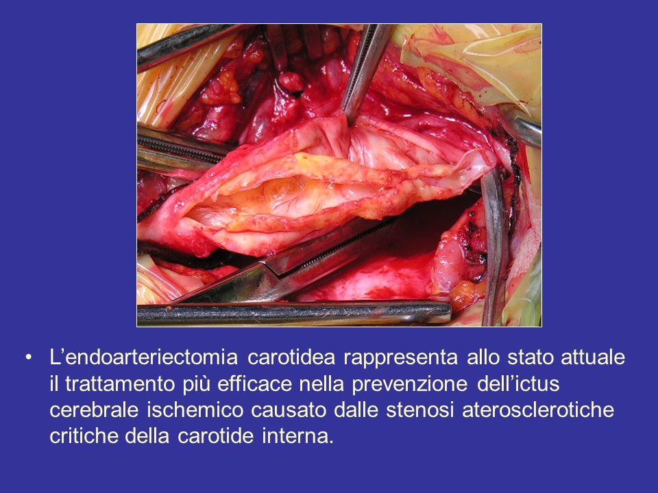 Lendoarteriectomia carotidea rappresenta allo stato attuale il trattamento più efficace nella prevenzione dellictus cerebrale ischemico causato dalle