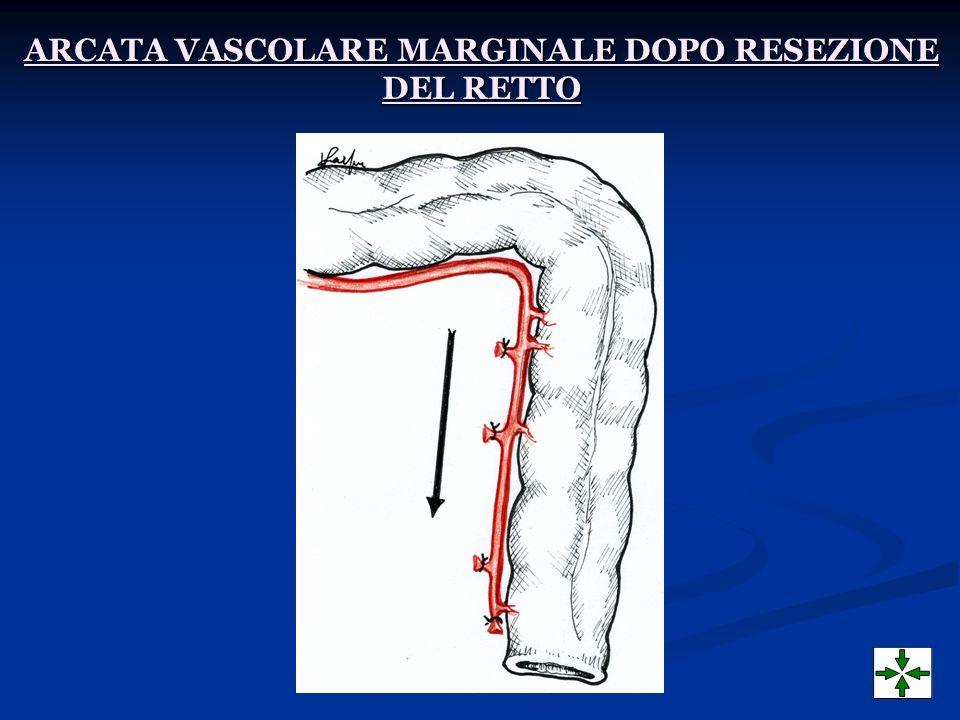 ARCATA VASCOLARE MARGINALE DOPO RESEZIONE DEL RETTO