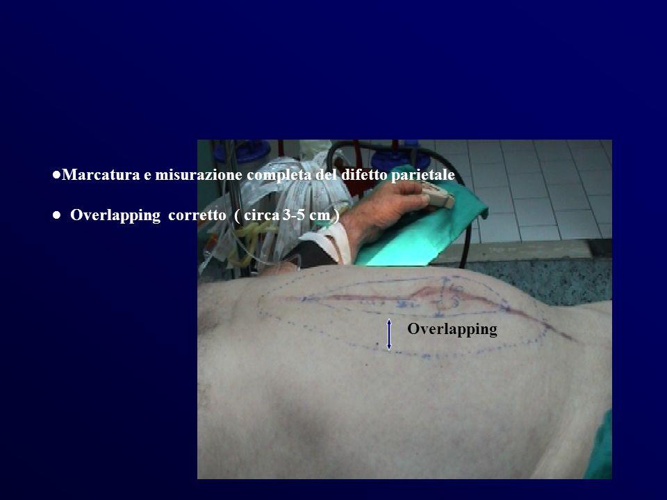 Marcatura e misurazione completa del difetto parietale Overlapping corretto ( circa 3-5 cm ) Overlapping