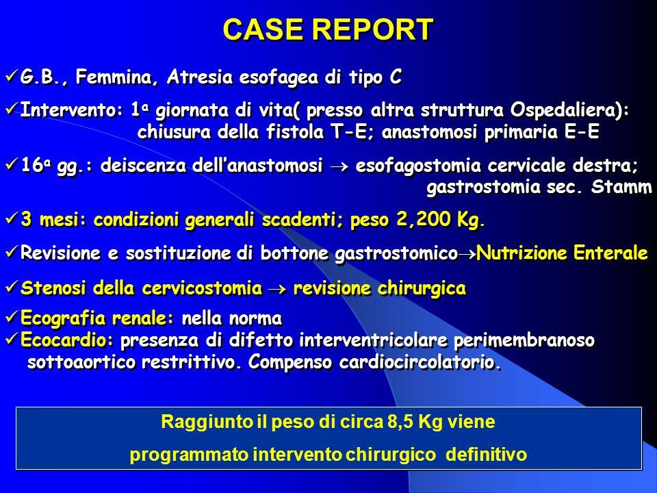 G.B., Femmina, Atresia esofagea di tipo C Intervento: 1 a giornata di vita( presso altra struttura Ospedaliera): chiusura della fistola T-E; anastomos