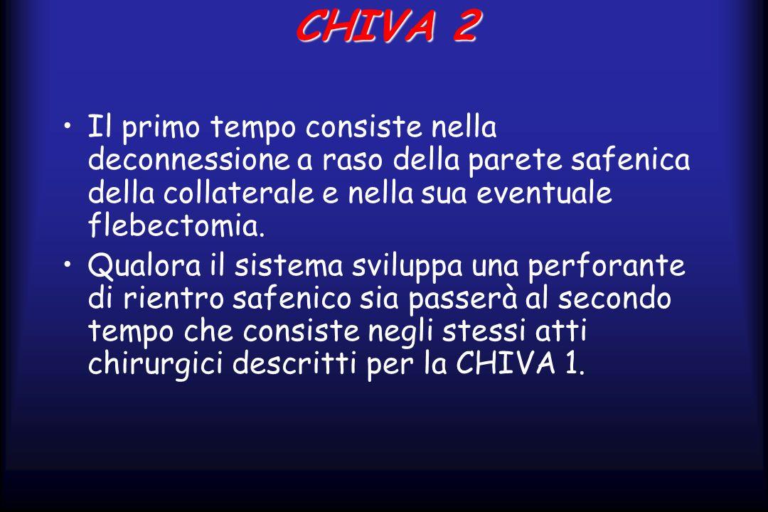 CHIVA 2 Il primo tempo consiste nella deconnessione a raso della parete safenica della collaterale e nella sua eventuale flebectomia. Qualora il siste