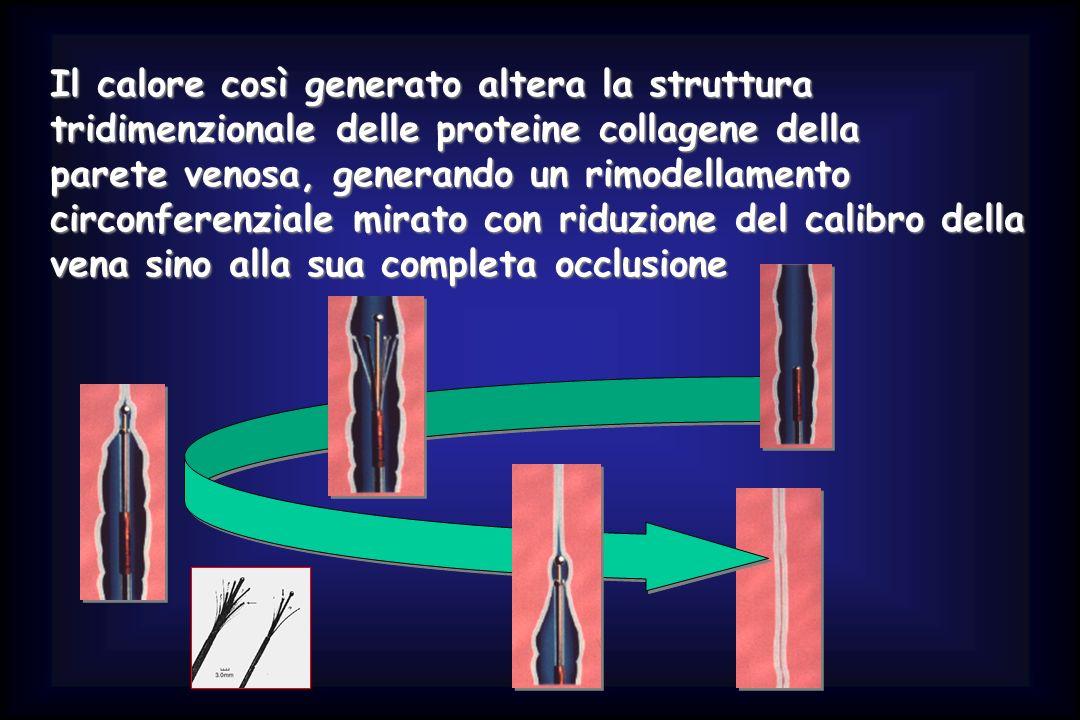 Il calore così generato altera la struttura tridimenzionale delle proteine collagene della parete venosa, generando un rimodellamento circonferenziale