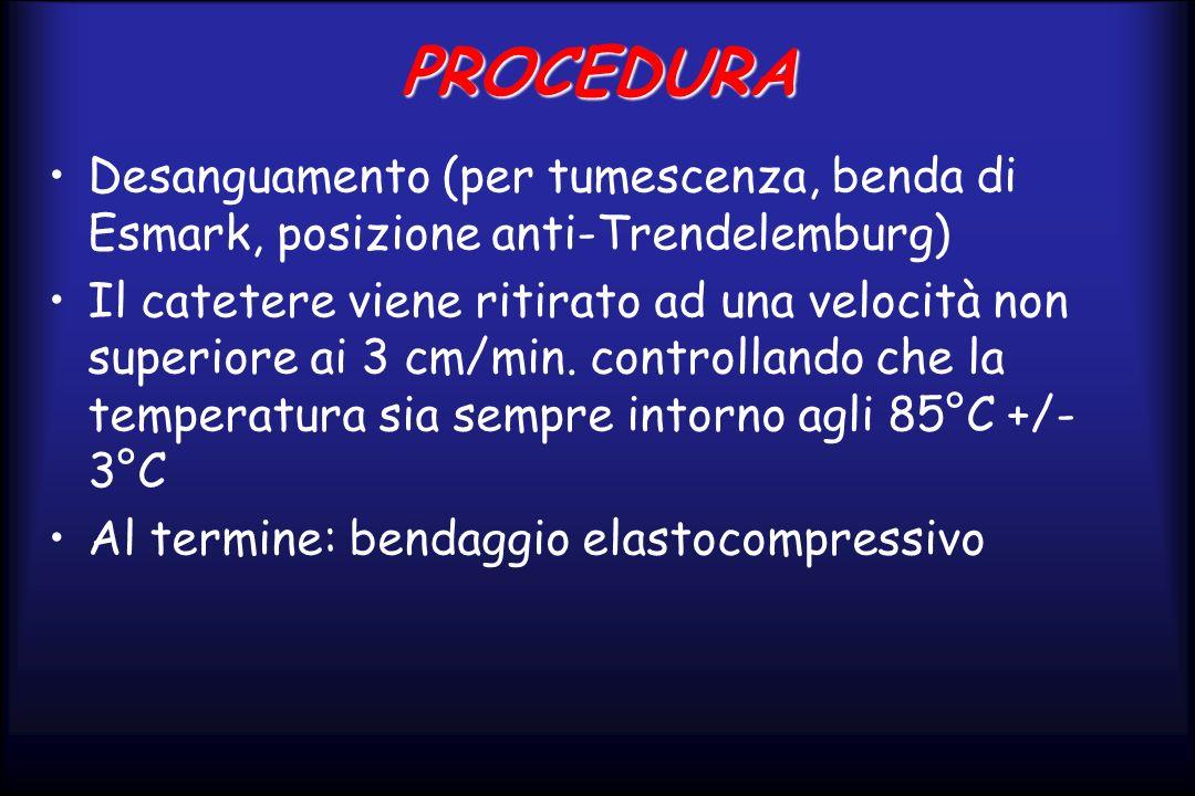 PROCEDURA Desanguamento (per tumescenza, benda di Esmark, posizione anti-Trendelemburg) Il catetere viene ritirato ad una velocità non superiore ai 3