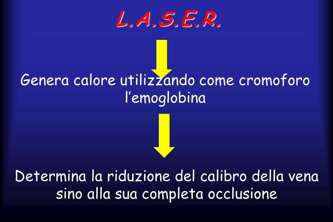L.A.S.E.R. Genera calore utilizzando come cromoforo lemoglobina Determina la riduzione del calibro della vena sino alla sua completa occlusione