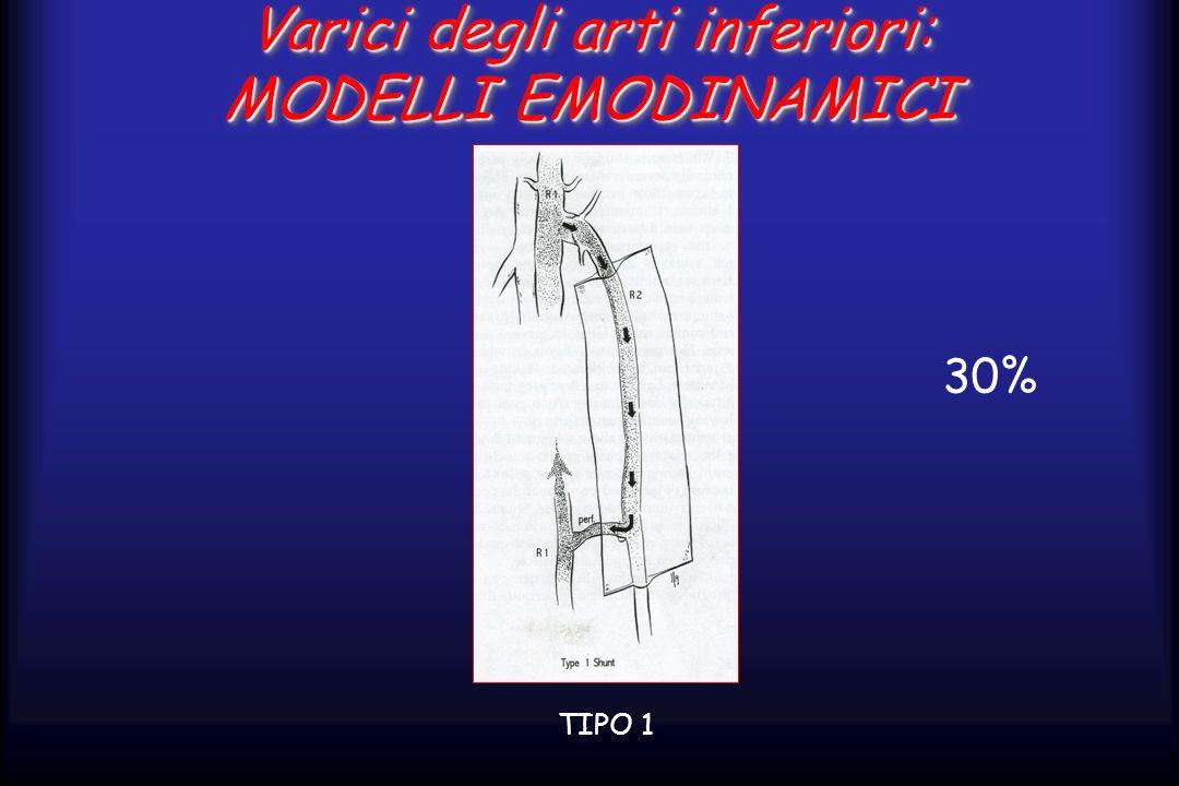 Varici degli arti inferiori: MODELLI EMODINAMICI TIPO 1 30%