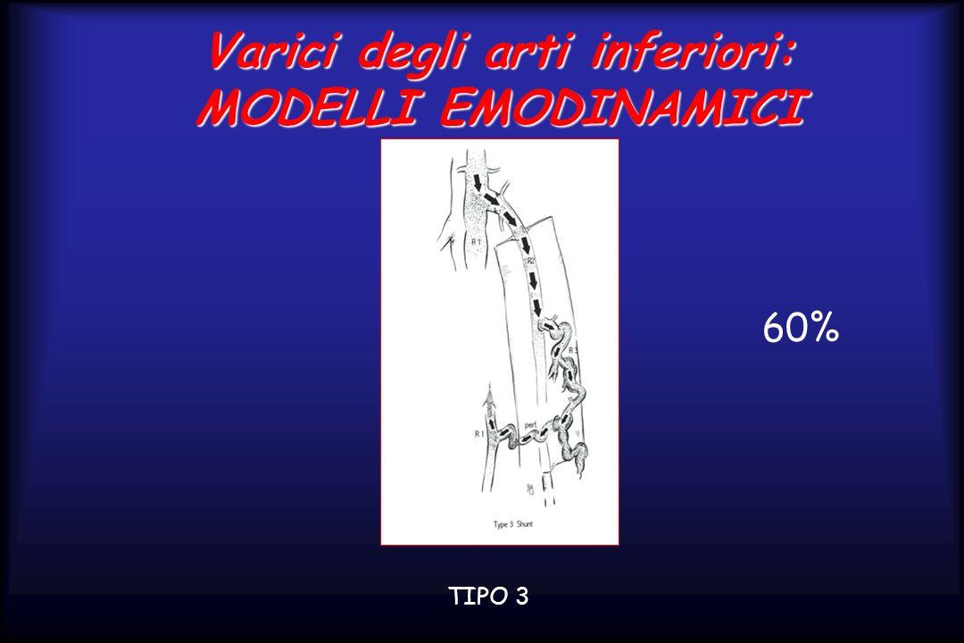 Varici degli arti inferiori: MODELLI EMODINAMICI TIPO 3 60%