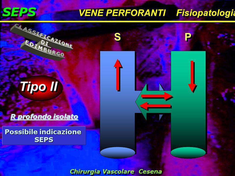 SEPS VENE PERFORANTI Fisiopatologia SEPS VENE PERFORANTI Fisiopatologia Tipo II S S P P R profondo isolato Possibile indicazione SEPS Chirurgia Vascol