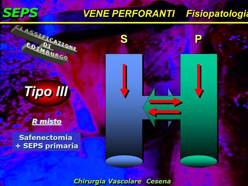SEPS VENE PERFORANTI Fisiopatologia Tipo III S S P P R misto Safenectomia + SEPS primaria Chirurgia Vascolare Cesena