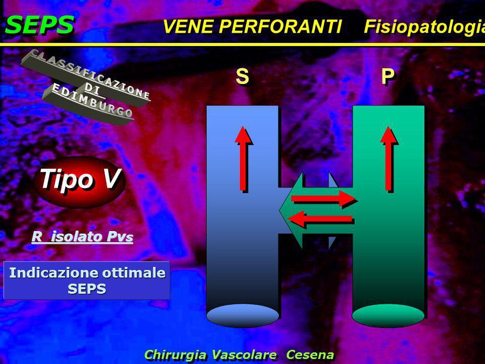 SEPS VENE PERFORANTI Fisiopatologia Tipo V S S P P R isolato Pv s Chirurgia Vascolare Cesena Indicazione ottimale SEPS