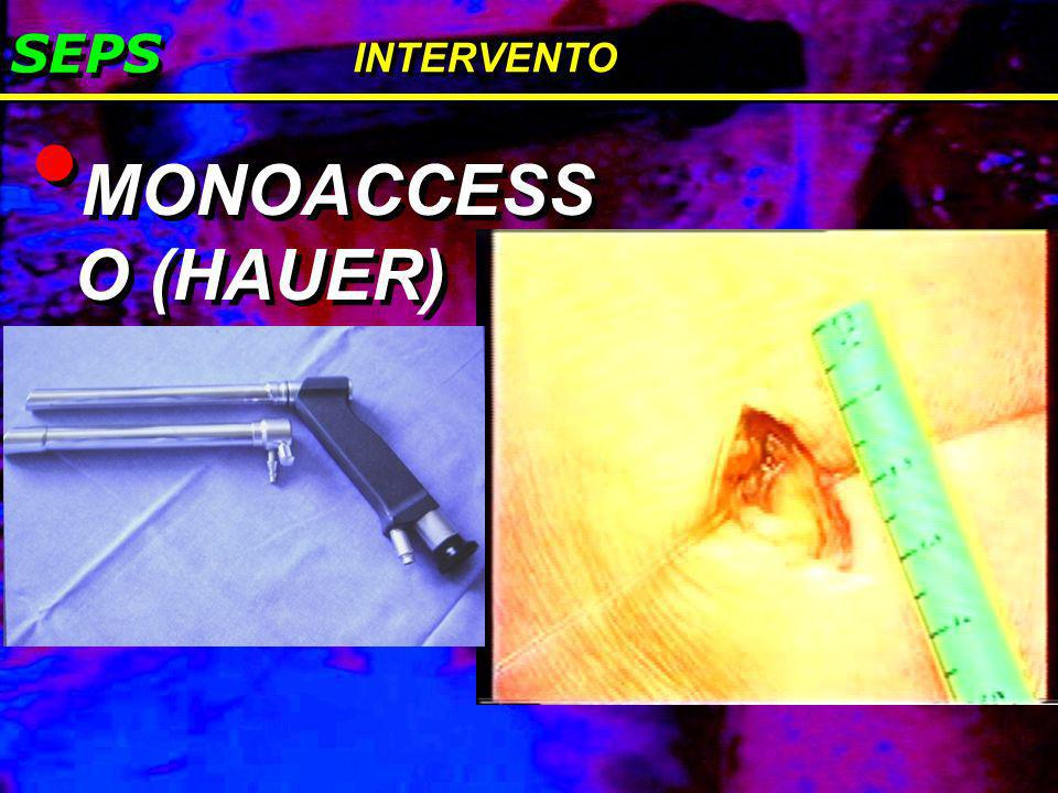 SEPS INTERVENTO MONOACCESS O (HAUER)