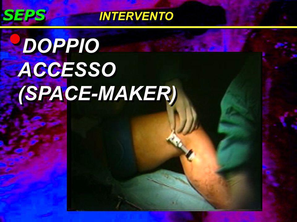 SEPS INTERVENTO DOPPIO ACCESSO (SPACE-MAKER)