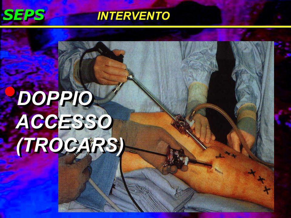SEPS INTERVENTO DOPPIO ACCESSO (TROCARS)