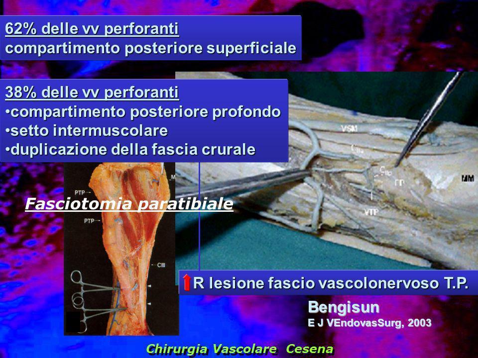 62% delle vv perforanti compartimento posteriore superficiale Bengisun E J VEndovasSurg, 2003 Chirurgia Vascolare Cesena R lesione fascio vascolonervo