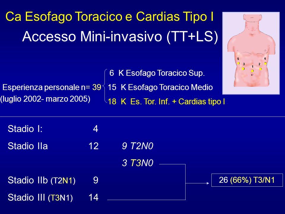 Ca Esofago Toracico e Cardias Tipo I Accesso Mini-invasivo (TT+LS) 6 K Esofago Toracico Sup. n= 3915 K Esofago Toracico Medio 18 K Es. Tor. Inf. + Car
