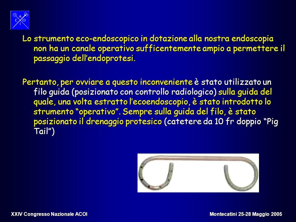 Lo strumento eco-endoscopico in dotazione alla nostra endoscopia non ha un canale operativo sufficentemente ampio a permettere il passaggio dellendopr
