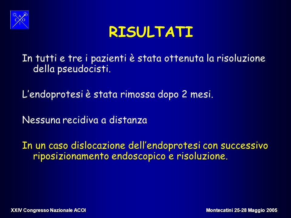 RISULTATI In tutti e tre i pazienti è stata ottenuta la risoluzione della pseudocisti. Lendoprotesi è stata rimossa dopo 2 mesi. Nessuna recidiva a di