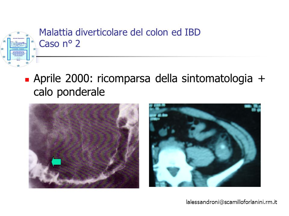 Malattia diverticolare del colon ed IBD Caso n° 2 Aprile 2000: ricomparsa della sintomatologia + calo ponderale lalessandroni@scamilloforlanini.rm.it