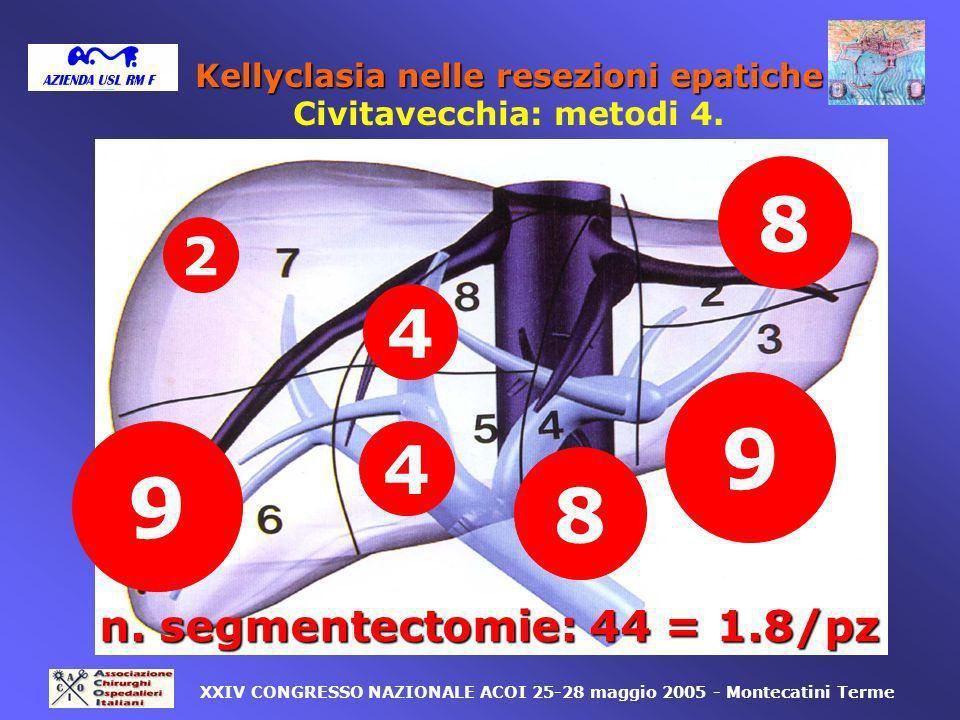 2 8 9 8 9 4 4 XXIV CONGRESSO NAZIONALE ACOI 25-28 maggio 2005 - Montecatini Terme n. segmentectomie: 44 = 1.8/pz Kellyclasia nelle resezioni epatiche