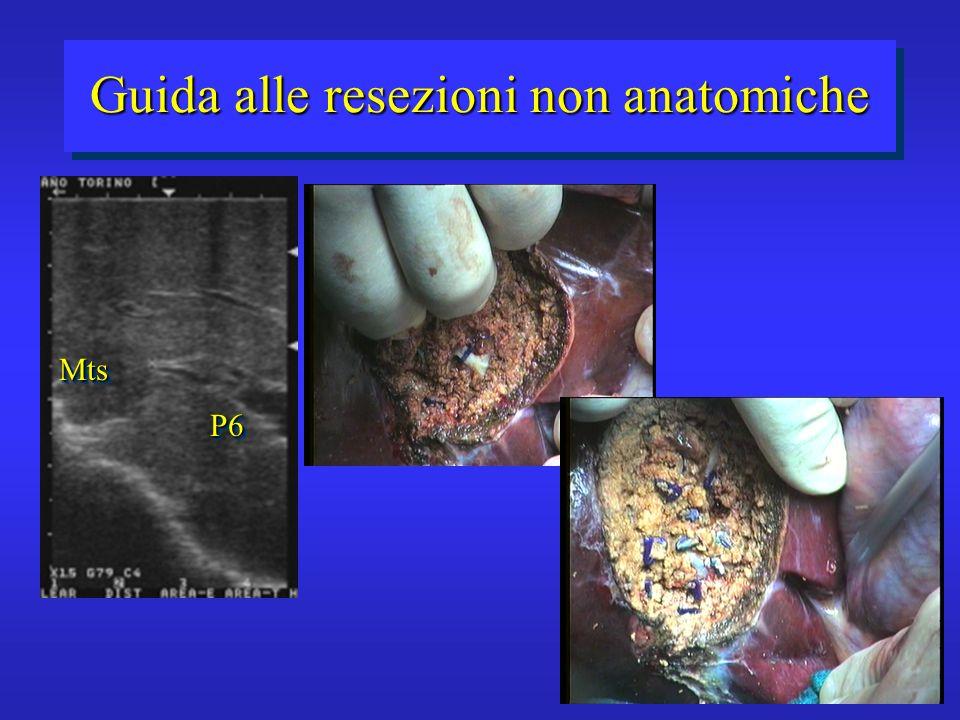 Guida alle resezioni non anatomiche P6P6 MtsMts