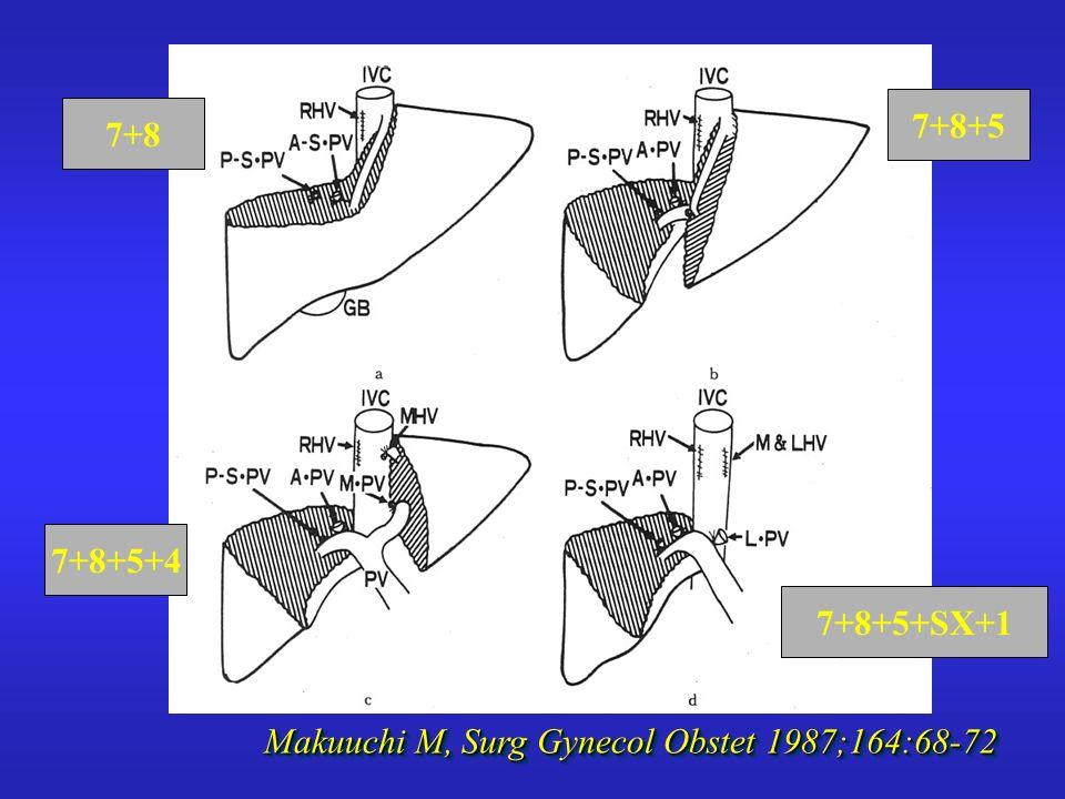 7+8 7+8+5 7+8+5+4 7+8+5+SX+1 Makuuchi M, Surg Gynecol Obstet 1987;164:68-72