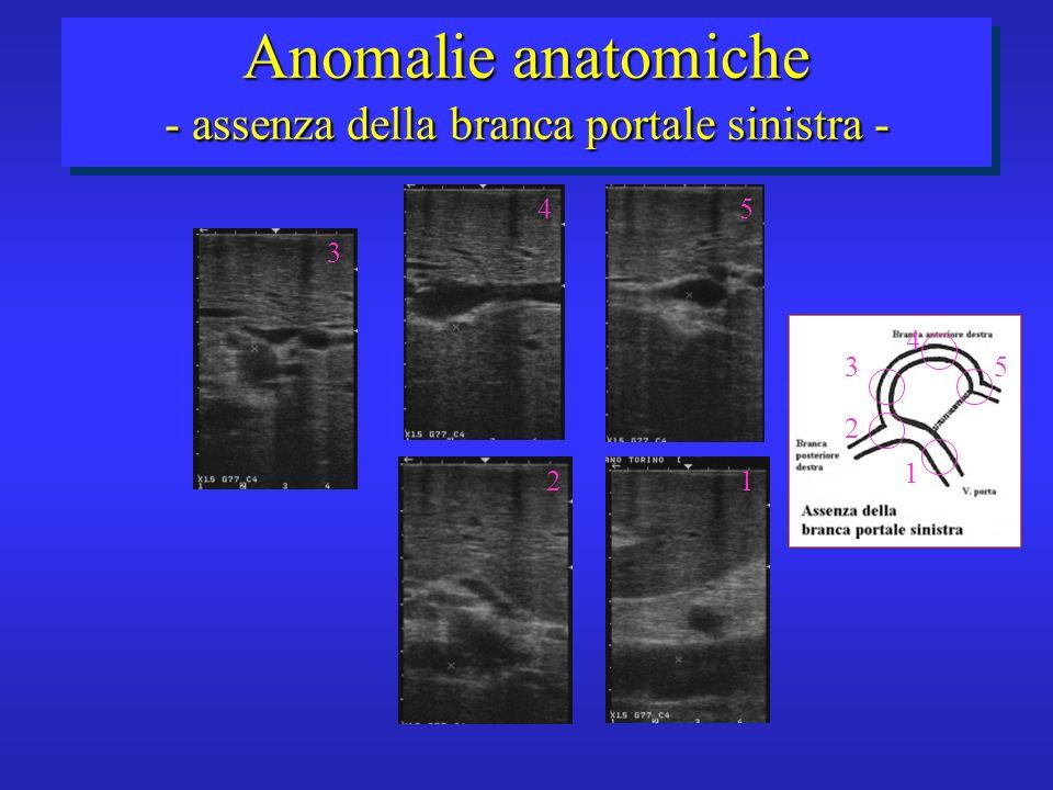 1 3 4 2 5 2 3 45 1 Anomalie anatomiche - assenza della branca portale sinistra -