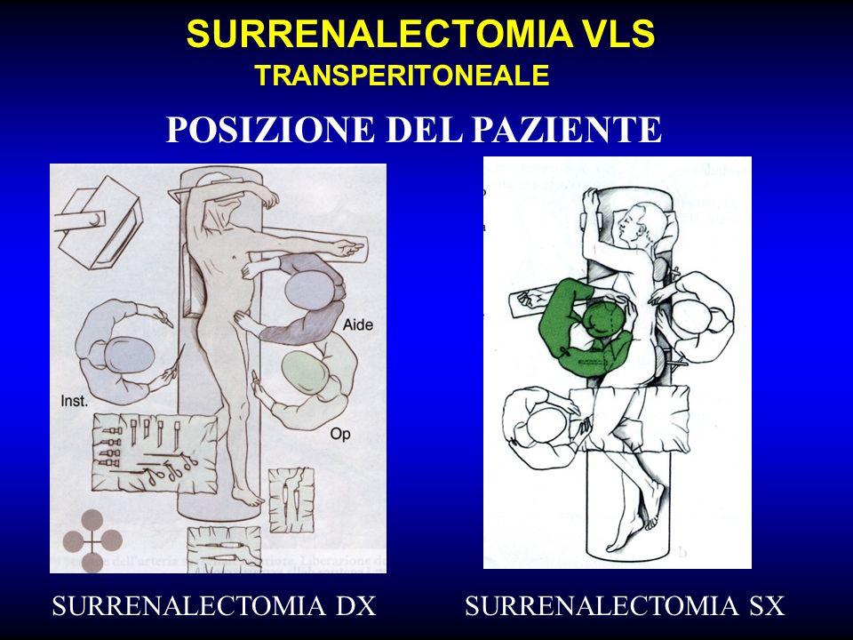 SURRENALECTOMIA VLS TRANSPERITONEALE POSIZIONE DEL PAZIENTE SURRENALECTOMIA DXSURRENALECTOMIA SX