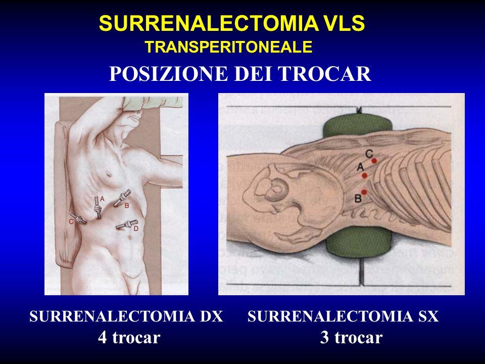 SURRENALECTOMIA VLS TRANSPERITONEALE POSIZIONE DEI TROCAR SURRENALECTOMIA DX 4 trocar SURRENALECTOMIA SX 3 trocar