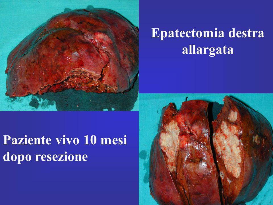 Epatectomia destra allargata Paziente vivo 10 mesi dopo resezione
