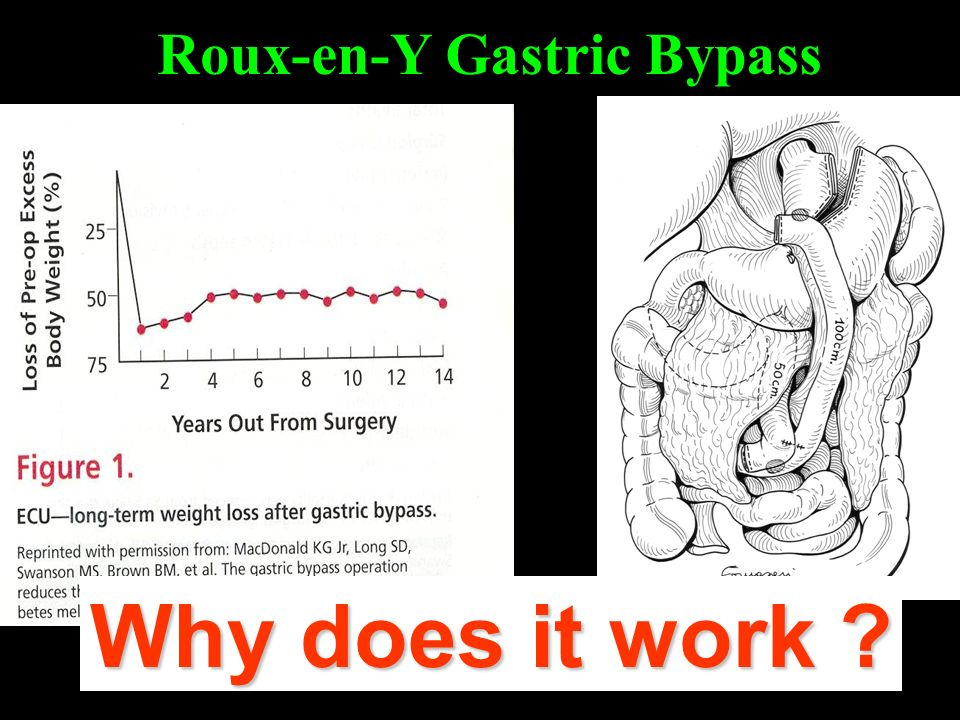 Roux-en-Y Gastric Bypass Why does it work ?