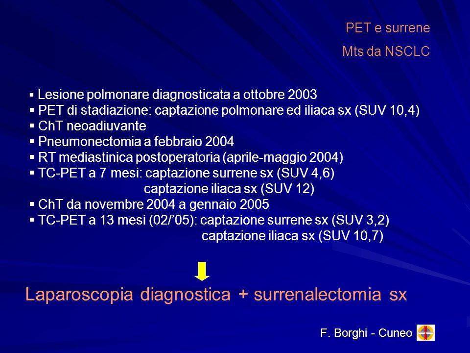 F. Borghi - Cuneo PET e surrene Mts da NSCLC Lesione polmonare diagnosticata a ottobre 2003 PET di stadiazione: captazione polmonare ed iliaca sx (SUV