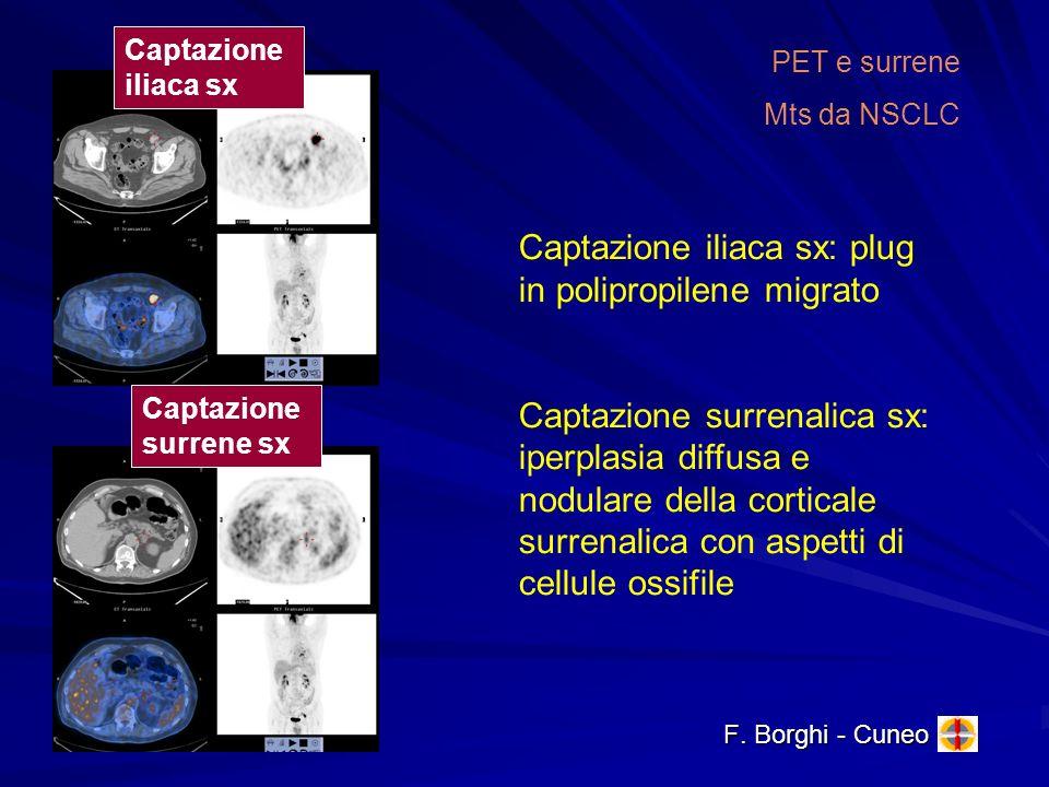 F. Borghi - Cuneo PET e surrene Mts da NSCLC Captazione surrene sx Captazione iliaca sx Captazione iliaca sx: plug in polipropilene migrato Captazione