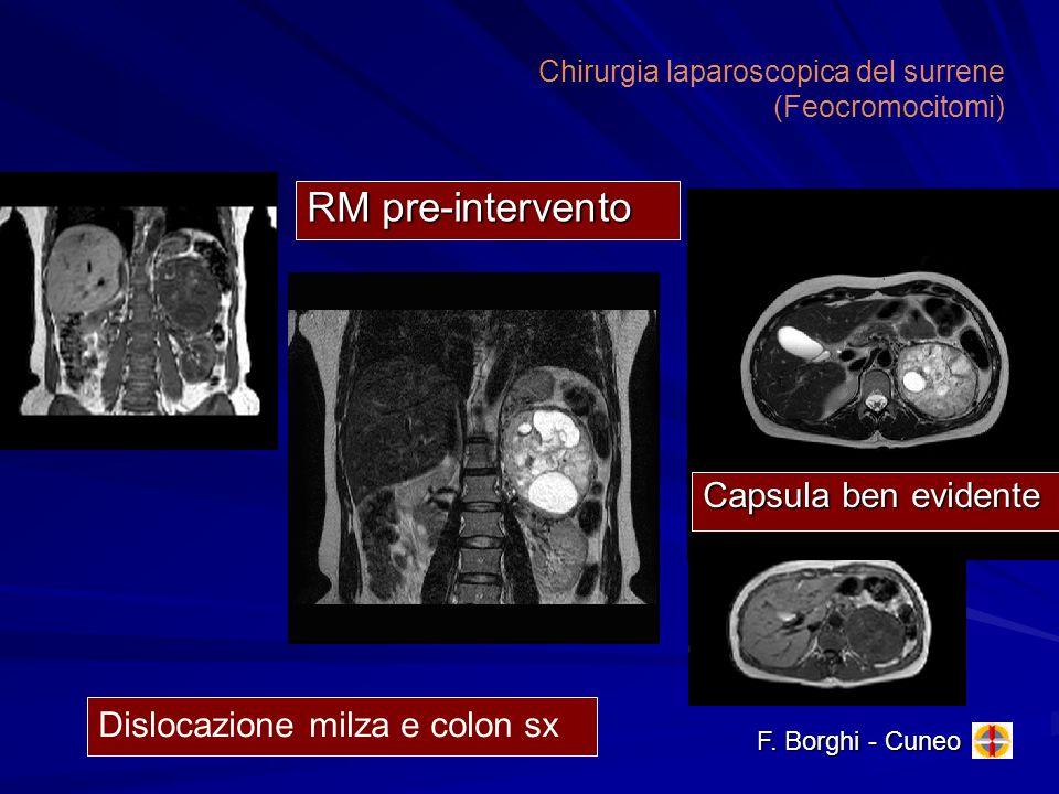 Chirurgia laparoscopica del surrene (Feocromocitomi) RM pre-intervento Capsula ben evidente Dislocazione milza e colon sx F. Borghi - Cuneo