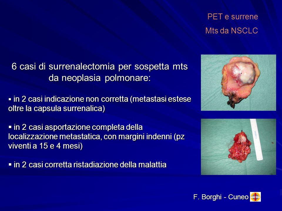 F. Borghi - Cuneo PET e surrene Mts da NSCLC 6 casi di surrenalectomia per sospetta mts da neoplasia polmonare: in 2 casi indicazione non corretta (me