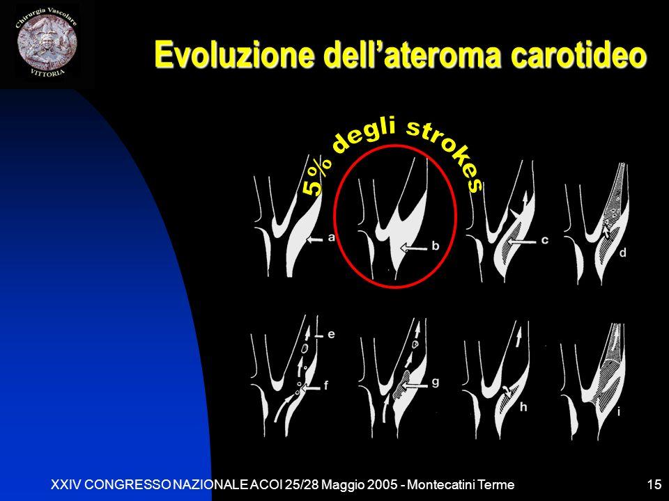 XXIV CONGRESSO NAZIONALE ACOI 25/28 Maggio 2005 - Montecatini Terme15 Evoluzione dellateroma carotideo