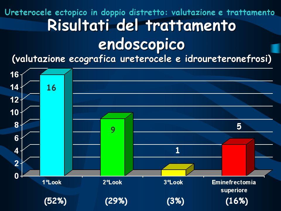Risultati del trattamento endoscopico (valutazione ecografica ureterocele e idroureteronefrosi) (52%)(29%)(3%)(16%) Ureterocele ectopico in doppio dis