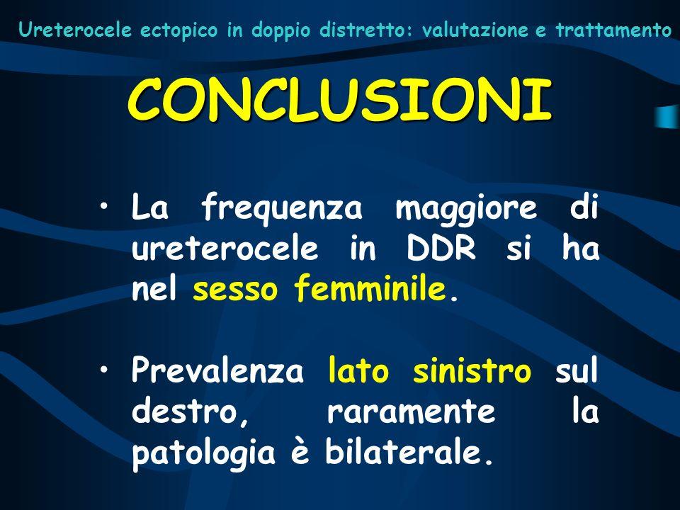 La frequenza maggiore di ureterocele in DDR si ha nel sesso femminile. Prevalenza lato sinistro sul destro, raramente la patologia è bilaterale. CONCL